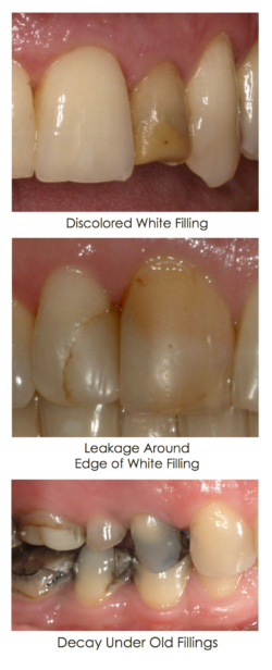 Discolored fillings case displayed in the set of images at Djawdan Center for Implant and Restorative Dentistry