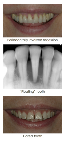 Loose tooth case in the form of three images at Djawdan Center for Implant and Restorative Dentistry