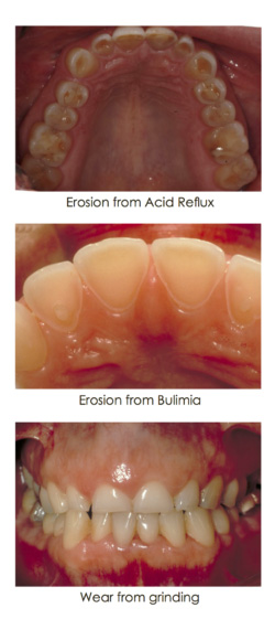 Tooth wear in the interior of the lower gum - case study images at Djawdan Center for Implant and Restorative Dentistry