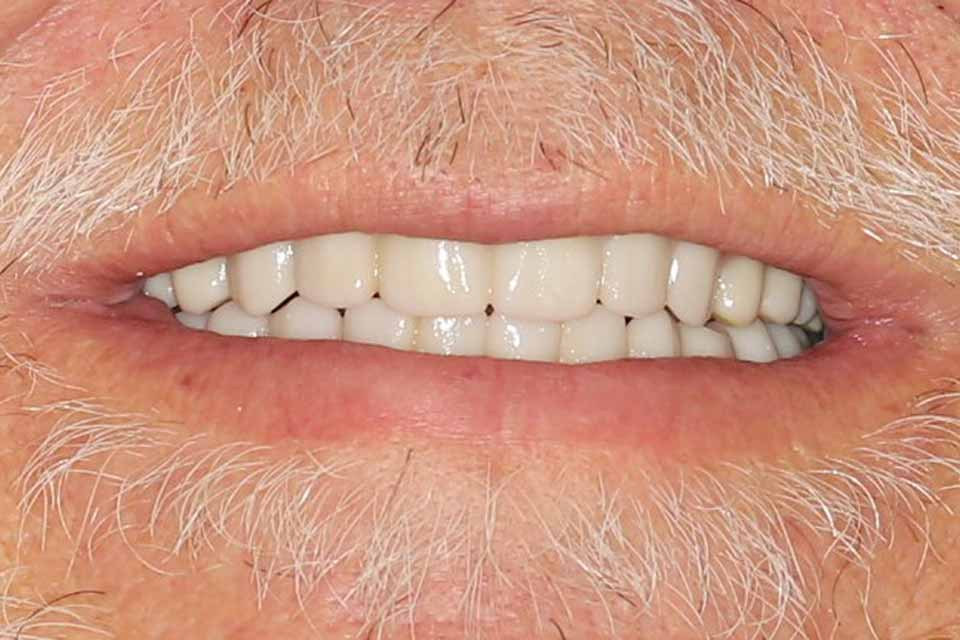 After smile of a patient at Djawdan Center for Implant and Restorative Dentistry