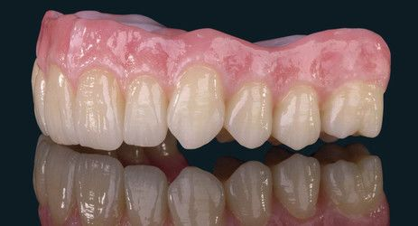 Image of upper denture from the on-site lab at Djawdan Center for Implant and Restorative Dentistry in Annapolis, MD