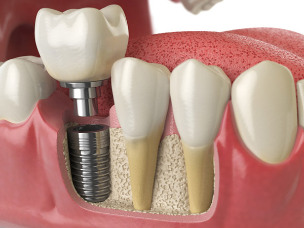Diagram of dental implant in to jaw bone at Djawdan Center for Implant and Restorative Dentistry.