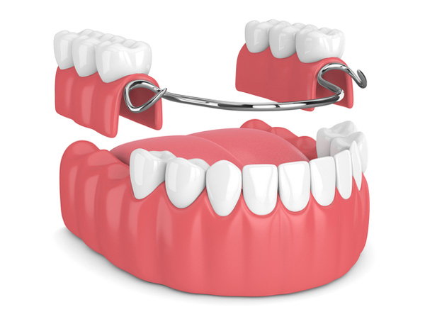 Rendering of removable partial denture at Djawdan Center for Implant and Restorative Dentistry.